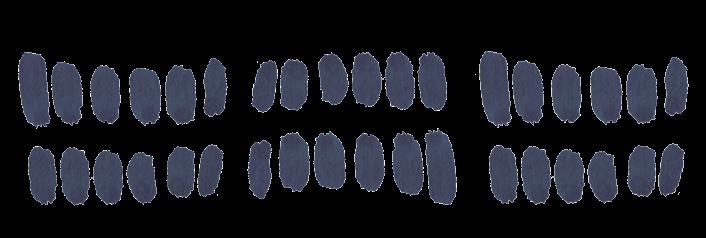 sinisiä täpliä